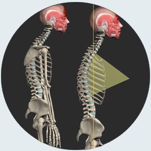 Posture disorders